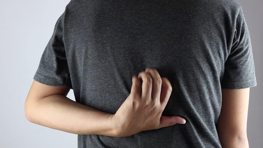 cara menghilangkan jerawat di punggung secara alami, cara mengobati jerawat punggung