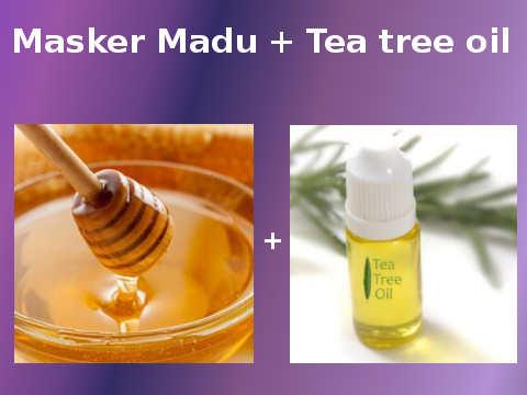 Masker Madu Dan Tea Tree Oil Untuk Menghilangkan Jerawat Secara Alami Dengan Cepat