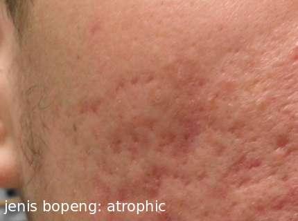 menghilangkan bopeng secara medis jenis bopeng atrophic scars