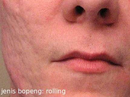 menghilangkan bopeng secara medis jenis bopeng rolling sars