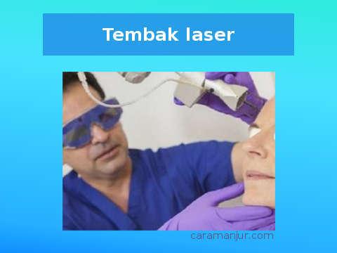 metode laser untuk menghilangkan bopeng secara medis