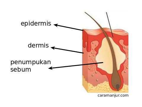 penampang kulit proses terjadinya bopeng