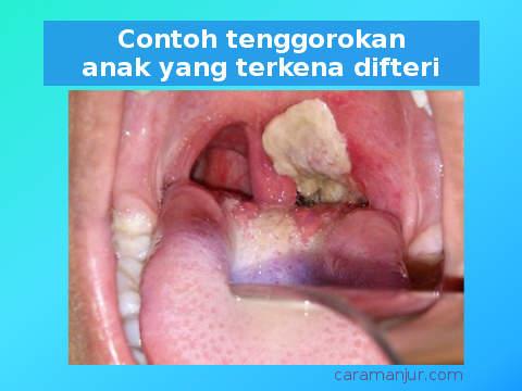 tanda tanda tenggorokan anak terkena penyakit difteri