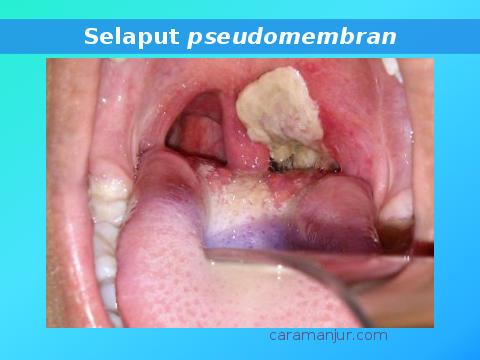 selaput pseudomembran pada orang dewasa yang terkena penyakit difteri