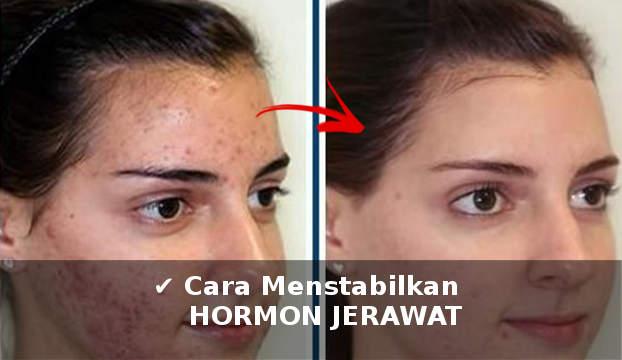 cara menstabilkan hormon jerawat