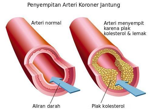 arteri koroner jantung menyempit karena plak kolesterol dan lemak