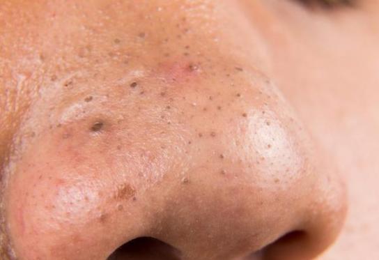 gambar komedo hitam di hidung
