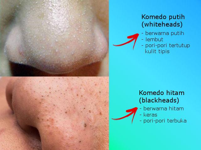 gambar perbedaan komedo hitam dan komedo putih