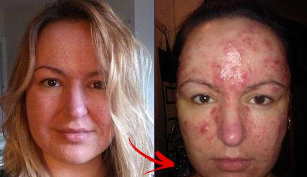 Obat, Kosmetik, & Zat Kimia Penyebab Jerawat Yang Harus Diwaspadai