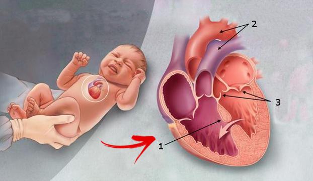 Penyakit Jantung Bawaan: Ciri, Gejala, Penyebab, & Cara Mengobatinya