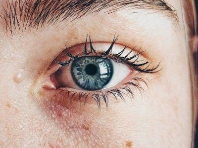 manfaat madu untuk wajah mencegah kanker kulit