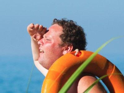manfaat madu untuk wajah mengatasi iritasi karena terbakar matahari