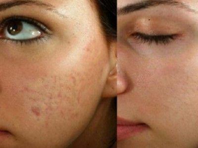 manfaat madu untuk wajah menghilangkan bopeng bekas jerawat