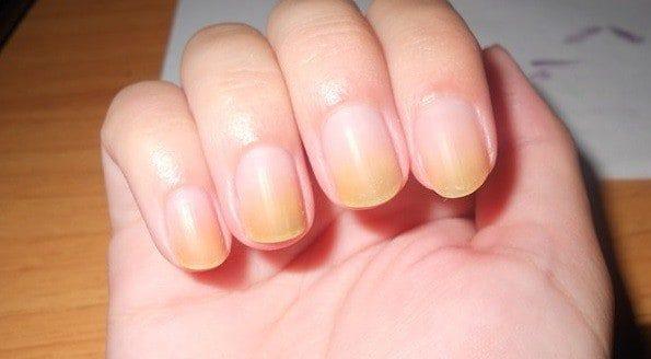 cara memutihkan kuku tangan yang kuning