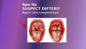 apa itu suspect difteri