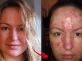 kosmetik penyebab jerawat