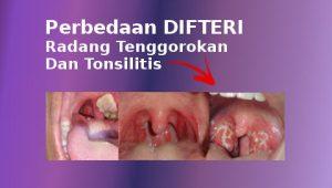 perbedaan difteri radang tenggorokan dan tonsilitis radang amandel