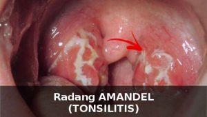 radang amandel tonsilitis ciri gejala penyebab cara mengobati 1